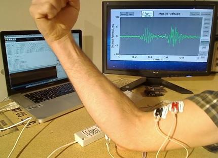 EMG elektroden