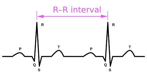 RR interval