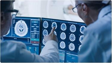 Medische diagnose door AI als voorbeeld van industrie 4.0